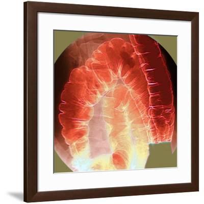 Large Intestine, X-ray-Du Cane Medical-Framed Photographic Print