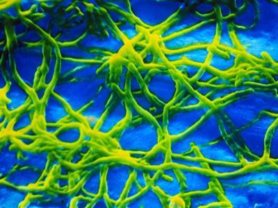 https://imgc.artprintimages.com/img/print/legionella-pneumophila-bacteria_u-l-pzie4t0.jpg?p=0