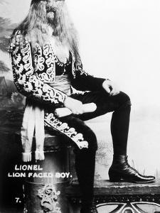 Lion-Faced Man, 1907