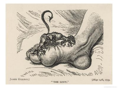 Little Devil Sinks His Teeth into the Swollen Foot of a Gout Sufferer-James Gillray-Giclee Print