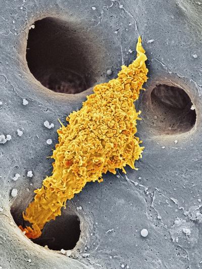 Liver Macrophage Cell, SEM-Thomas Deerinck-Photographic Print