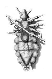 Louse Clinging to a Human Hair, 1665