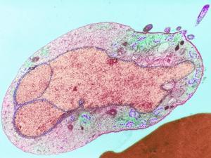 Malaria Parasite, TEM