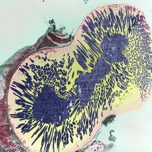 Malaria Parasites, TEM