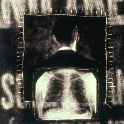 Man  And  X-ray--Photographic Print