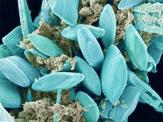 Marine Diatom-Micro Discovery-Photographic Print