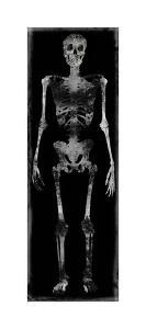 Skeleton III by Martin Wagner