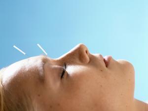 Acupuncture by Mauro Fermariello