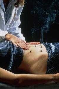 Acupuncturist Carries Out Moxibustion on Abdomen by Mauro Fermariello