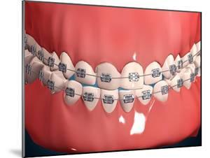 Medical Illustration of Human Mouth Showing Teeth, Gums and Metal Braces