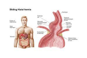 Medical Ilustration of a Hiatal Hernia in the Upper Part of the Stomach into the Thorax