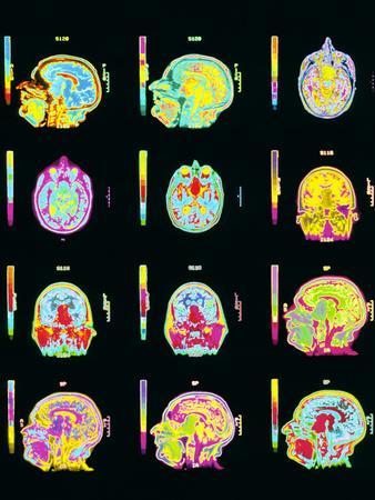 Coloured MRI Scans of Human Brain (multiple Views)