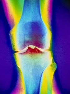Coloured X-ray of a Human Knee Joint by Mehau Kulyk