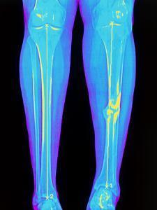 Coloured X-ray of Fractured Shin Bone (tibia) by Mehau Kulyk