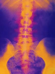 Coloured X-ray of Normal Lower Spine And Pelvis by Mehau Kulyk