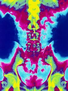 Coloured X-ray of Normal Lumbar Spine (lower Back) by Mehau Kulyk