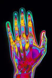 Coloured X-ray of the Healthy Hand of a Man by Mehau Kulyk