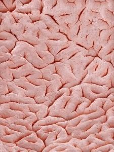Mucous Membrane from Colon of a Rat by Micro Discovery