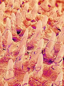 Tongue filiform papillae of a rabbit magnified x300 by Micro Discovery