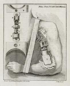 Bone-setting Mechanism, 18th Century by Middle Temple Library