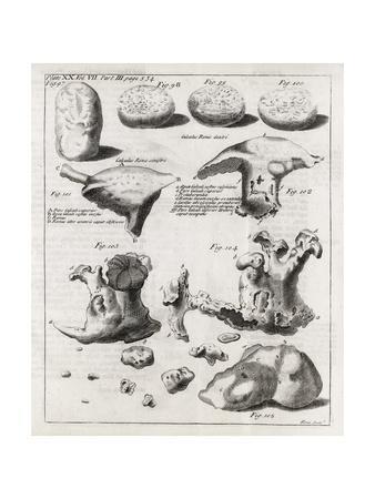 Kidney Stones, 18th Century