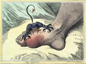 Gout, 18th-century Caricature by Miriam and Ira Wallach