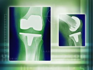 Knee Replacement, X-rays by Miriam Maslo
