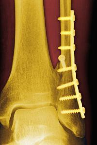 Pinned Ankle Fracture, Coloured X-ray by Miriam Maslo