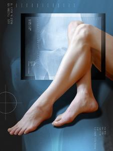 Woman's Legs, with Knee X-ray by Miriam Maslo