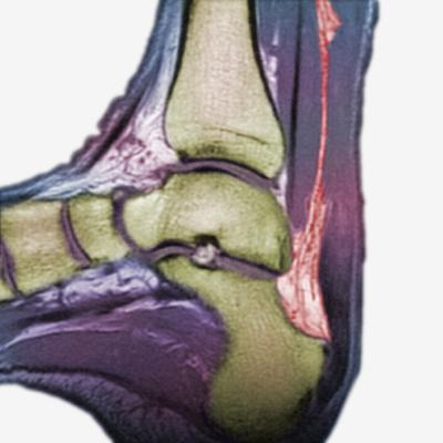 Mri Showing a Severe Rupture of the Achilles Tendon-Scientifica-Photographic Print