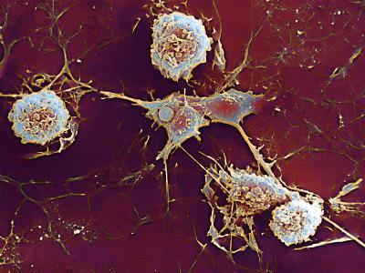 Multiple Sclerosis, SEM-Dr. John Zajicek-Photographic Print