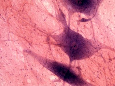 Multipolar Neurons--Photographic Print