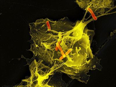 https://imgc.artprintimages.com/img/print/neutrophil-cell-trapping-bacteria-sem_u-l-pzjysk0.jpg?p=0