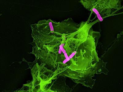 https://imgc.artprintimages.com/img/print/neutrophil-cell-trapping-bacteria-sem_u-l-pzjytd0.jpg?p=0