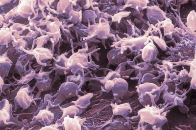 Activated Platelets, SEM