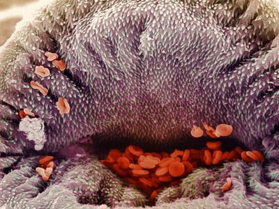 Coloured SEM of Mouth of Schistosome Parasite