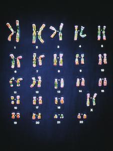 Normal Female Chromosomes