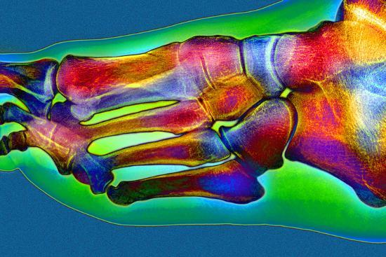 Normal Foot, X-ray-Du Cane Medical-Photographic Print