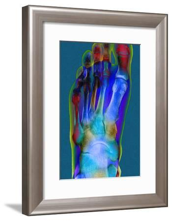 Normal Foot, X-ray-Du Cane Medical-Framed Photographic Print