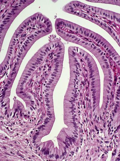 Normal Human Gallbladder Mucosal Folds or Rugae Lined by Simple Epithelium, H&E Stain, LM X64-Gladden Willis-Photographic Print