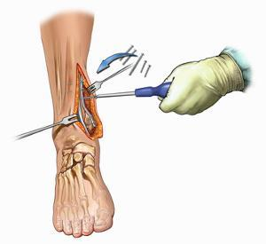Biomedical Illustration of Medial Ankle Surgical Exposure and Maleollar Fracture Fixation by Nucleus Medical Art