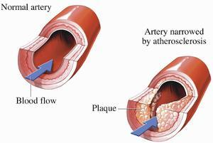Illustration of Blood Flow Through a Normal Section of Artery by Nucleus Medical Art