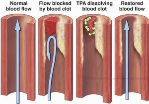 Illustration of Normal Blood Flow Within a Vessel, a Blood Vessel Blocked by a Blood Clot by Nucleus Medical Art