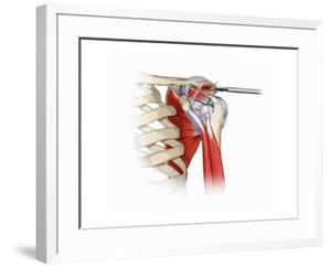 Illustration of Shoulder Acromioplasty Procedure by Nucleus Medical Art