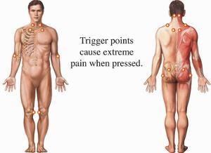 Illustration Showing the Trigger Points Associated with Fibromyalgia Syndrome (Fms) by Nucleus Medical Art
