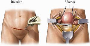 This Medical Exhibit Depicts Two Steps of an Abdominal Hysterectomy Procedure by Nucleus Medical Art