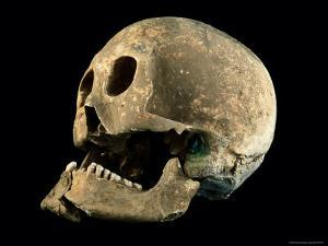 A Skull with a Bronze Arrowhead Embedded in the Bone by O. Louis Mazzatenta