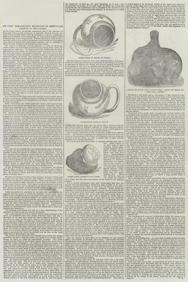 On Some Remarkable Examples of Irregular Growth in the Oyster--Giclee Print