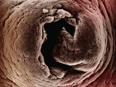 Opening of the Mammal Uterus Looking into the Oviduct-David Phillips-Photographic Print