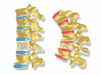 Osteoporosis-PASIEKA-Photographic Print